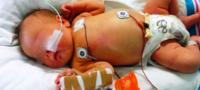 Padres obligaban a su bebé a llevar dieta vegana; terminó con daño cerebral