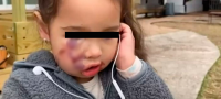 """""""Mami, soy fea"""": Perro pitbull ataca a una niña de 3 años en Texas; sufrió mordeduras en toda su carita"""