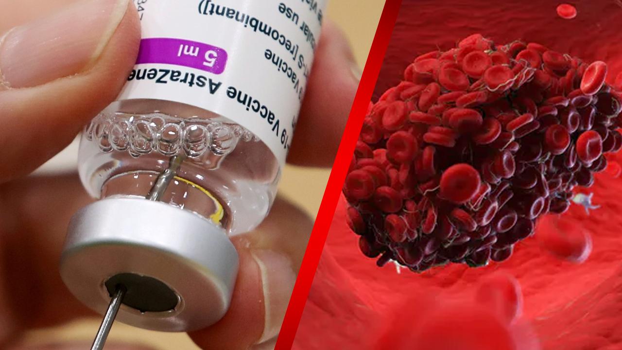Vacuna de AstraZeneca provoca coágulos sanguíneos: EMA