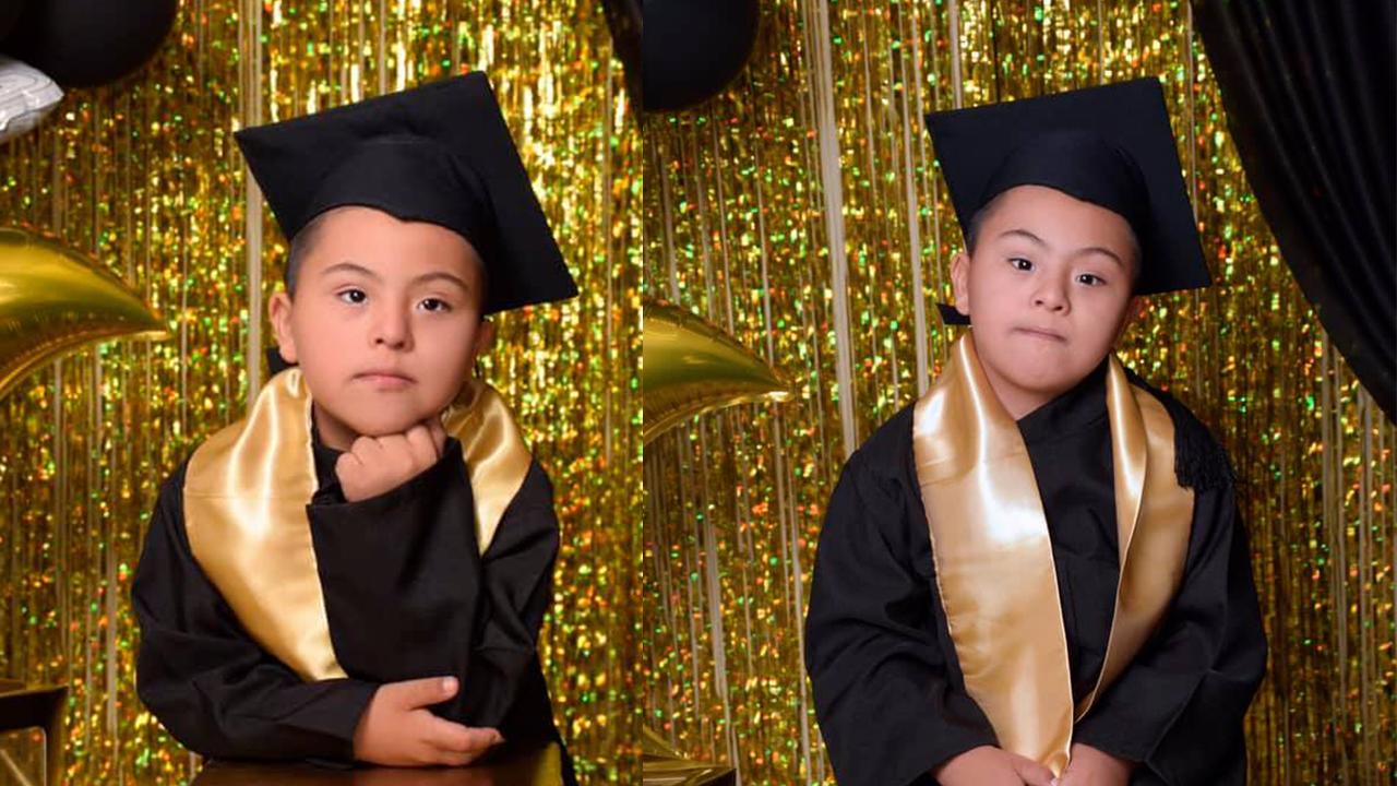 '¡Eres un campeón Romeo!'; regalan bonita sesión de fotos a niño con síndrome de Down en Torreón