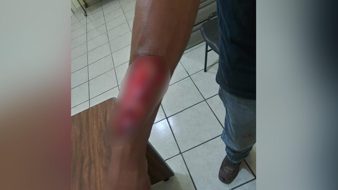 Policiaca: Pitbulls mandan al hospital a ciudadano de Coahuila; tuvo que ser hospitalizado