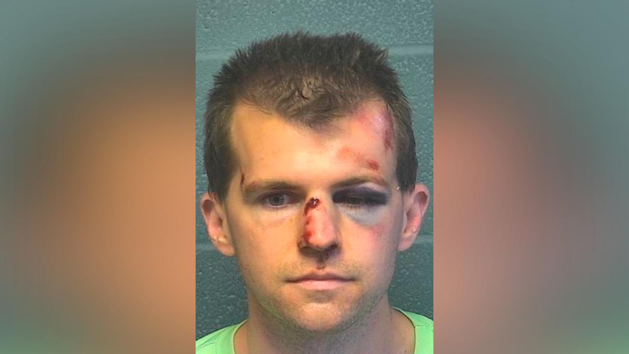 Hombre golpeó brutalmente a pastor: Lo descubrió tocando inapropiadamente a su hijito