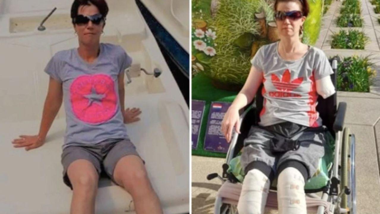 Mujer ingresó al hospital por un dolor estomacal: Doctores tuvieron que amputarle ambas piernas y un brazo