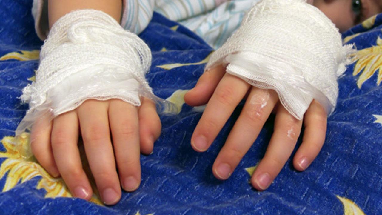 Su mamita le quemaba las manos en la estufa; pequeño de 5 años vivía infierno en Sabinas