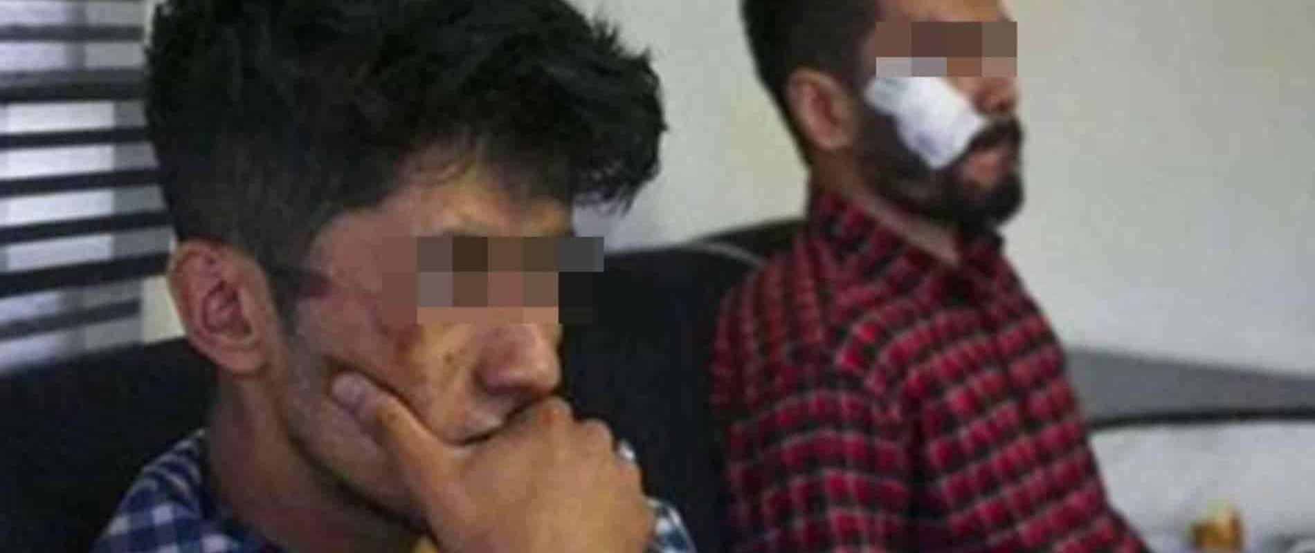 Tienes suerte de que no te hayamos decapitado: Talibanes golpearon brutalmente a dos periodistas; grabaron algo que no debían