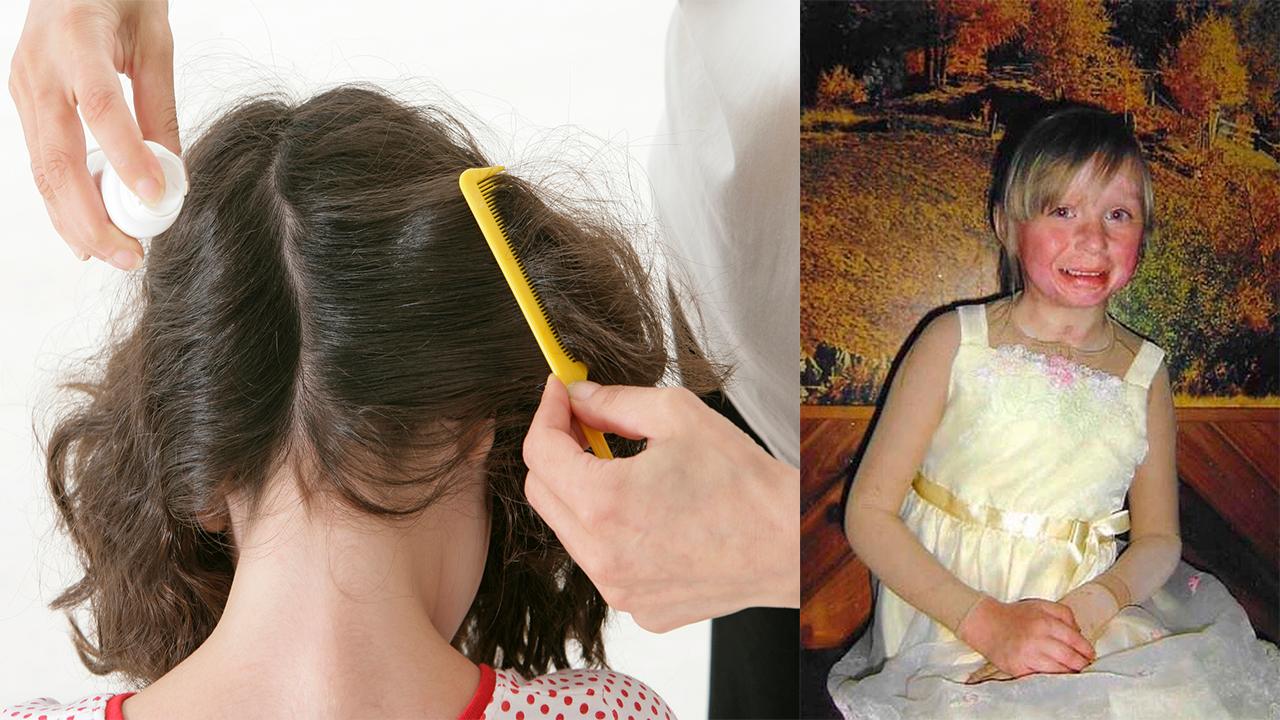 Mujer le prendió fuego a su hija de 4 años; intentó un remedio casero para quitarle los piojos